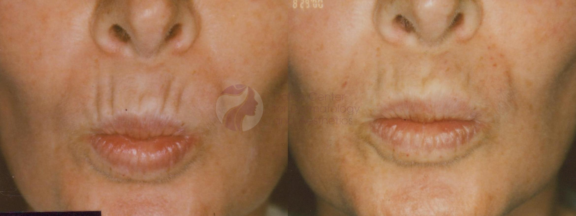 BOTOX® Cosmetic & Dysport® Case 31 Before & After View #1 | Dallas, TX | Dallas Center for Dermatology and Aesthetics
