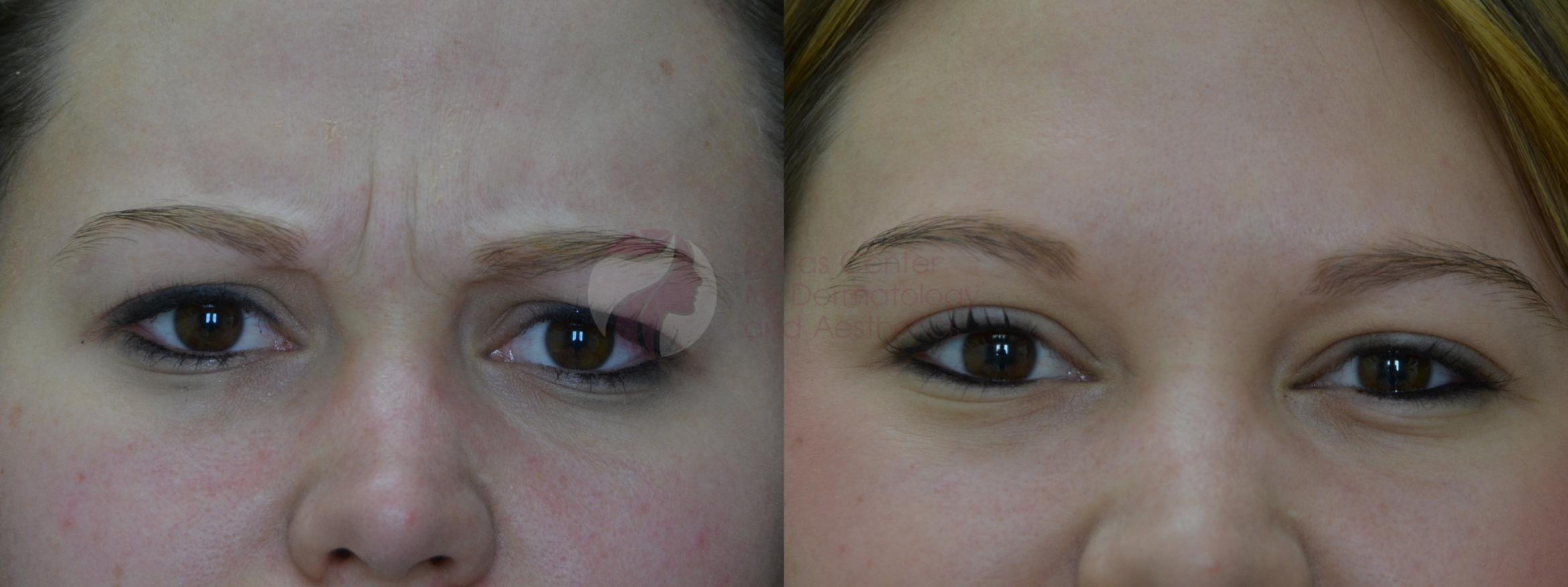 BOTOX® Cosmetic & Dysport® Case 39 Before & After View #1 | Dallas, TX | Dallas Center for Dermatology and Aesthetics