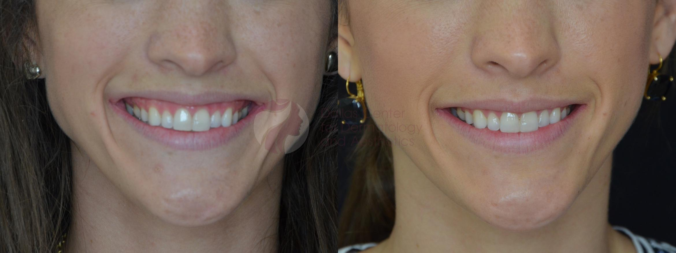 BOTOX® Cosmetic & Dysport® Case 55 Before & After View #1 | Dallas, TX | Dallas Center for Dermatology and Aesthetics