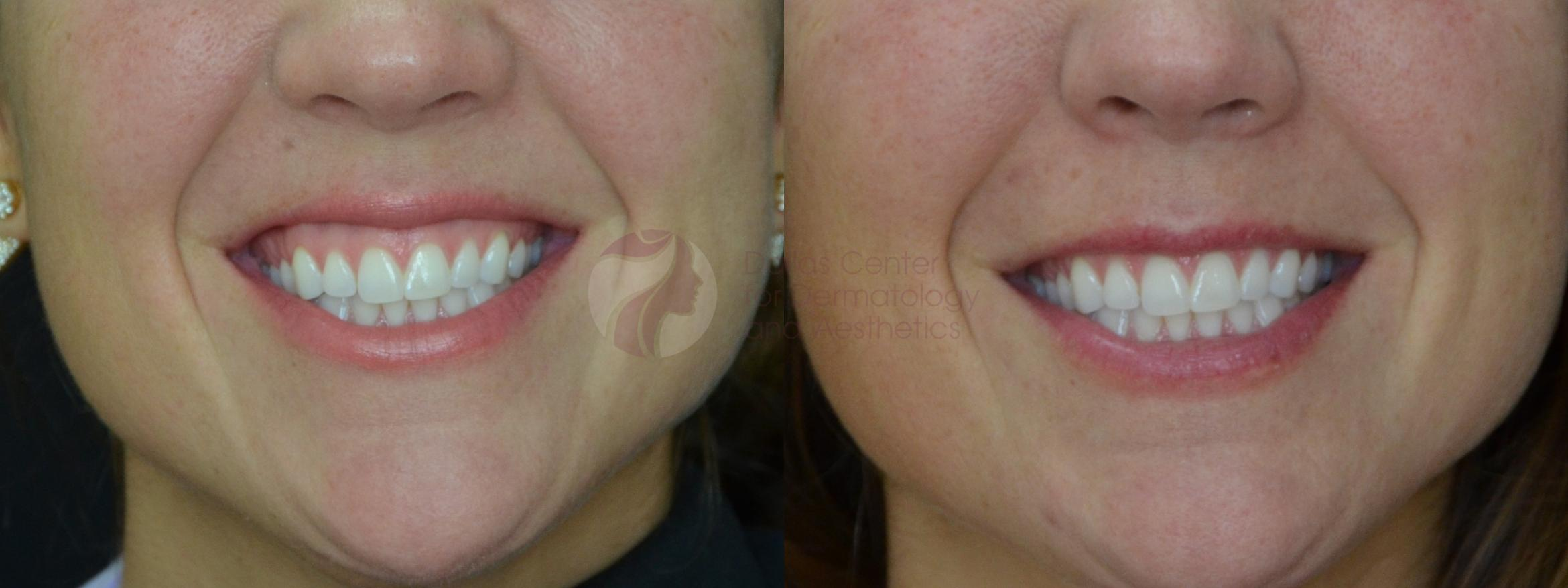 BOTOX® Cosmetic & Dysport® Case 58 Before & After View #1 | Dallas, TX | Dallas Center for Dermatology and Aesthetics