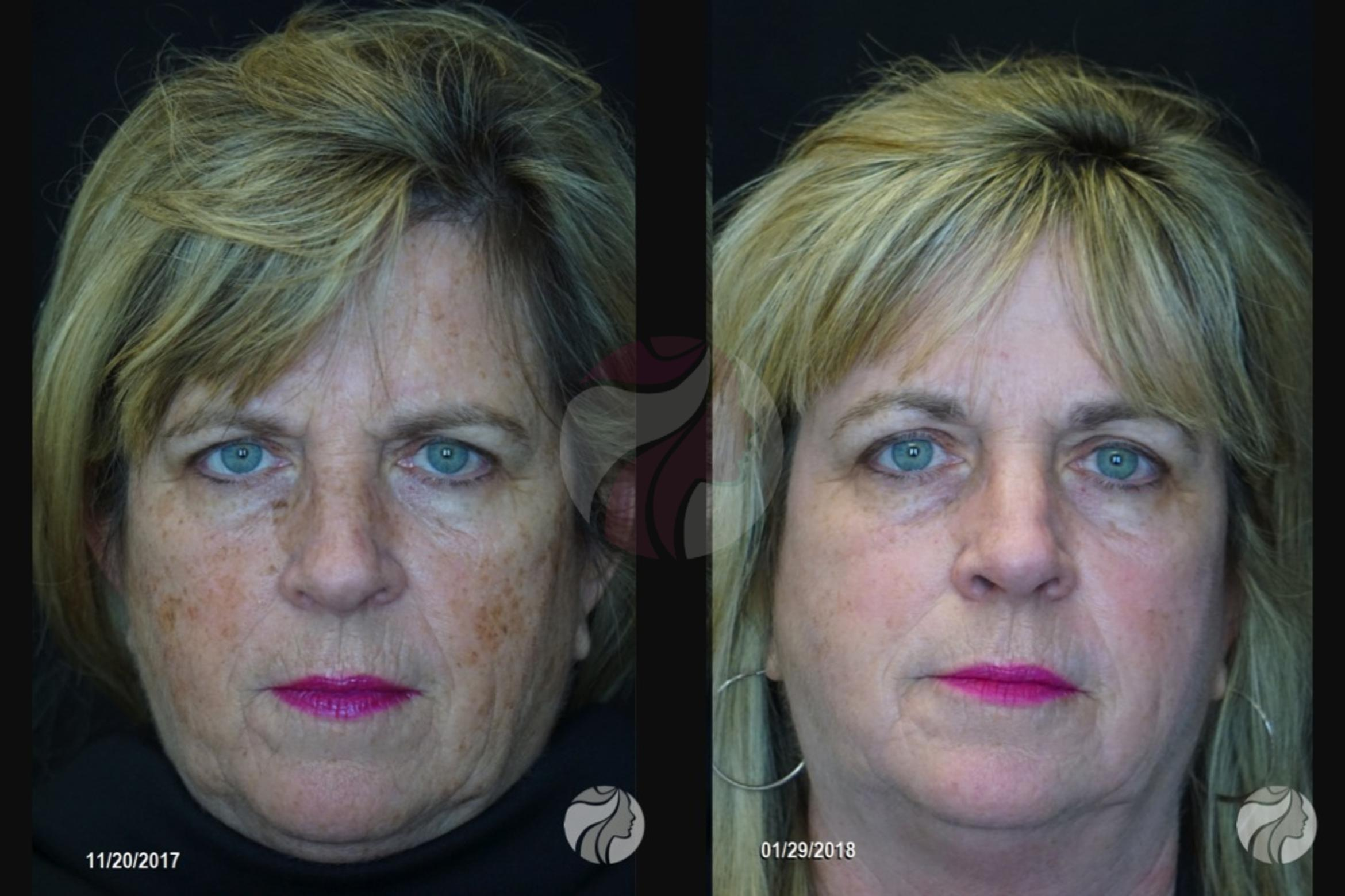 Chemical Peels Case 83 Before & After View #1 | Dallas, Plano, and Frisco, TX | Dallas Center for Dermatology and Aesthetics