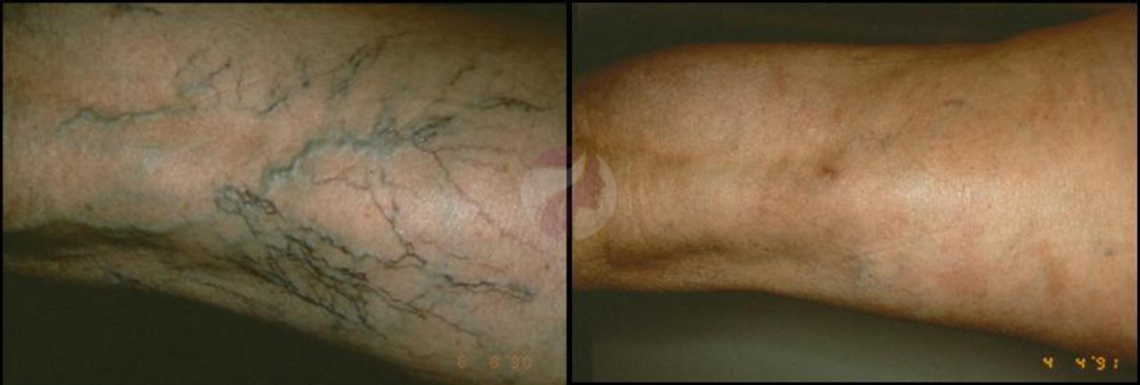 Sclerotherapy for Veins Case 35 Before & After View #1 | Dallas, TX | Dallas Center for Dermatology and Aesthetics