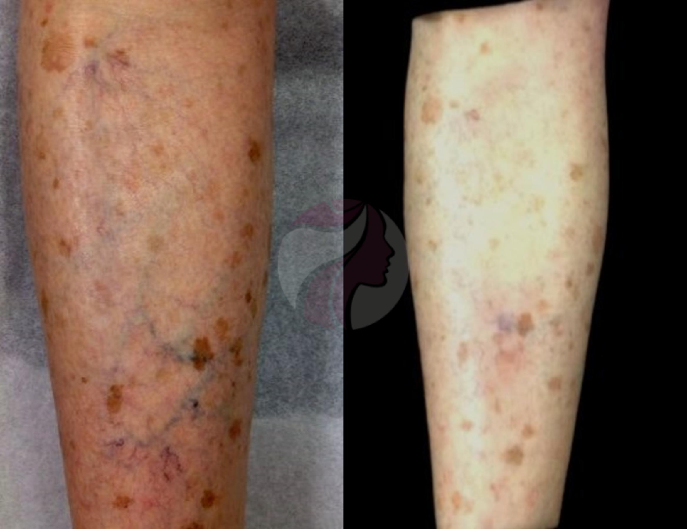 Sclerotherapy for Veins Case 61 Before & After View #1 | Dallas, TX | Dallas Center for Dermatology and Aesthetics